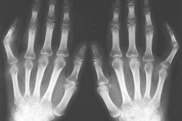 артрит на рентген-снимке