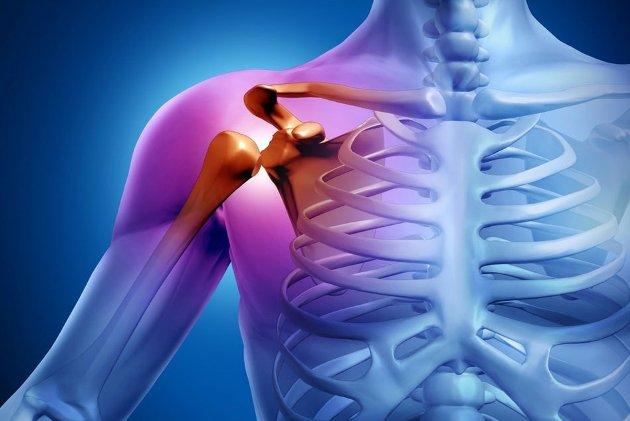 лечение артроза плечевого сустава препаратами