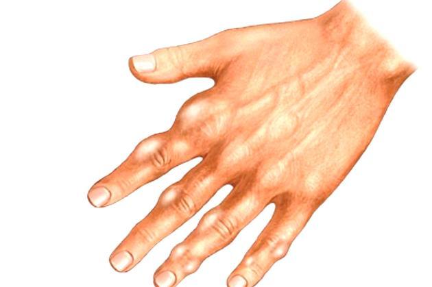 гигрома пальцев кисти