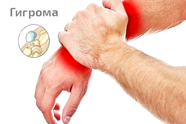 Гигрома (ганглий, шишка, ганглиозная киста): чем опасна, как лечить, к какому врачу обращаться, рассасывается ли гигрома