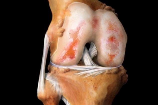 Гонартроз коленных суставов как лечить незначительной сглаженности контура сустава до