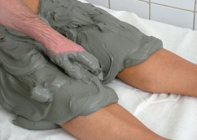 грязелечение болезни Гоффа