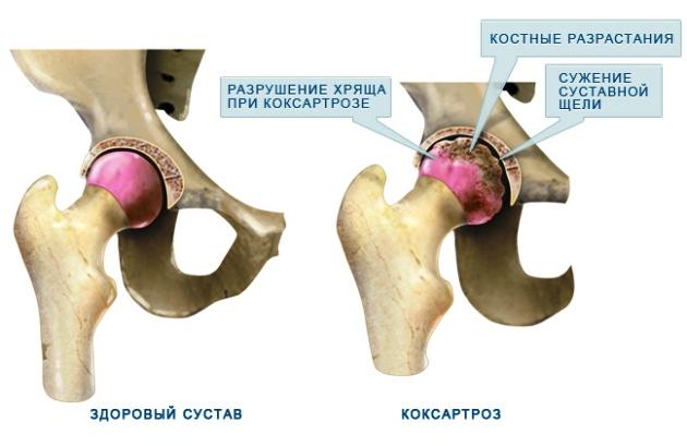 коксартроз - заболевание тазобедренного сустава