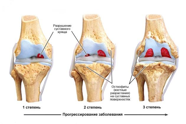 Картина деформирующего остеоартроза 3 стадии