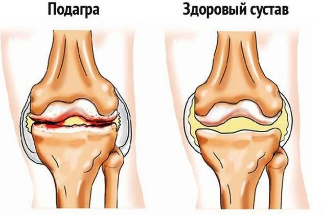 Симптоматика при заболеваниях суставов джиу джитсу приёмы на суставы рук