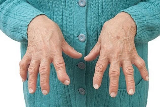 Чем отличается полиартрит от артрита