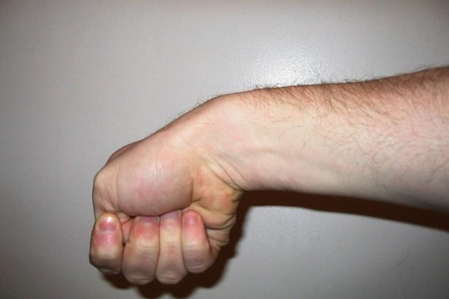 дегенеративный тендовагинит лучезапястного сустава