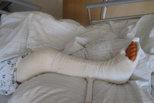 Изображение - Повреждения суставов виды travma-kolena