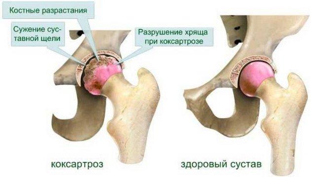 инфекция тазобедренного сустава