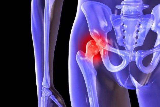 Рентгенологические признаки коксартроза тазобедренного сустава