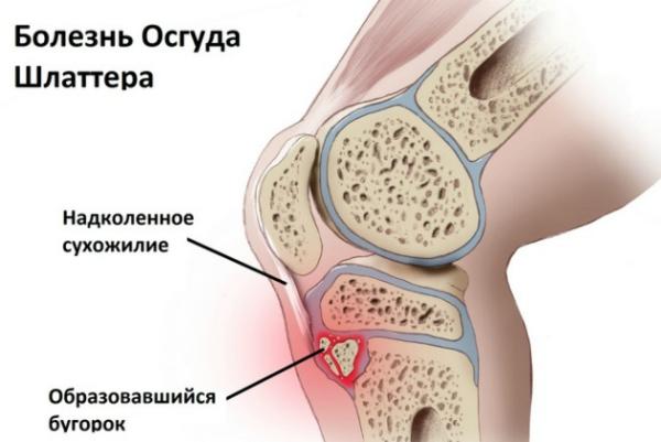 Болезнь шляттера коленного сустава лечение у взрослых