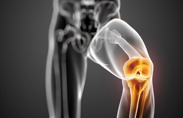 Артрит коленного сустава - причины, симптомы, диагностика и лечение