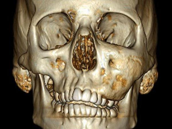 фиброзная дисплазия