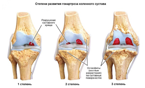 Двусторонний гонартроз 1, 2 и 3 степени коленного сустава: лечение и признаки