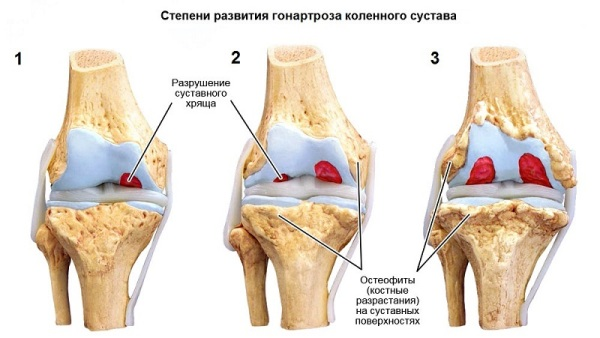 Артрит 1 степени причины симптомы степени и лечение