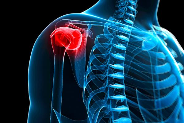 Плечелопаточный периартрит - причины симптомы лечение профилактика прогноз