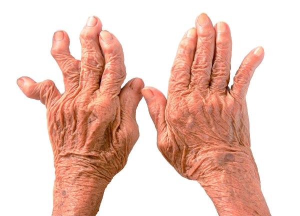 Полиостеоартроз рук и стопы формы и особенности лечения