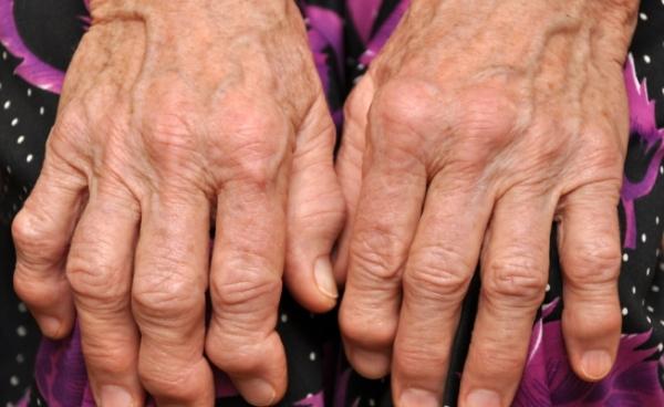 осложнения псориатического артрита