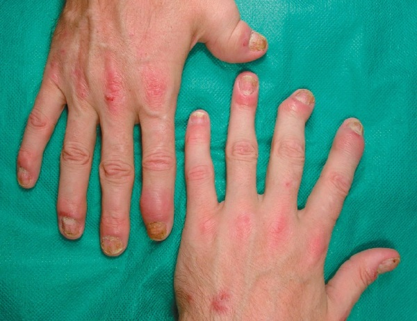 псориатический артрит