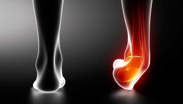 Что делать при повреждениях связки голеностопного сустава