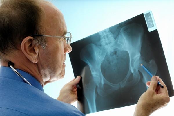 диагностика остеоартроза тазобедренного сустава