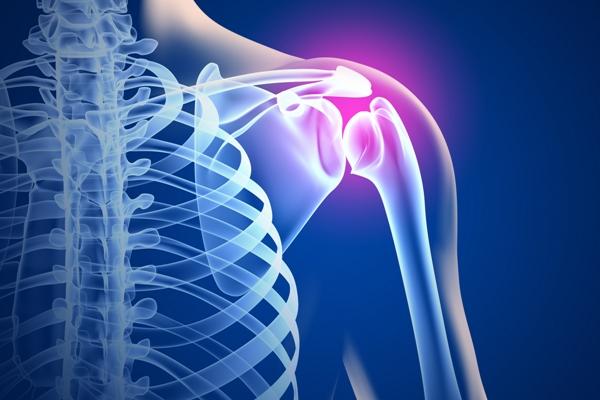 Симптомы артроза плечевого сустава