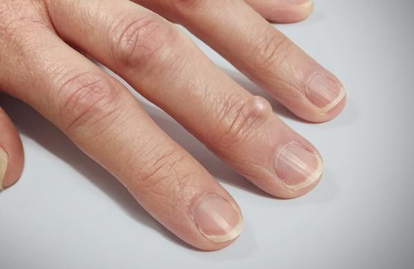 Гигрома на суставе пальца руки