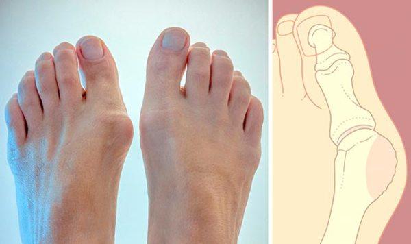 Косточка на ноге лечение причины возникновения на пальцах ног