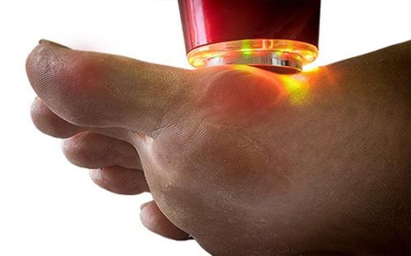 физиотерапия косточки на большом пальце ноги