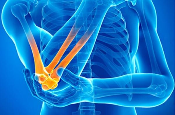 Артрит локтевого сустава лечение