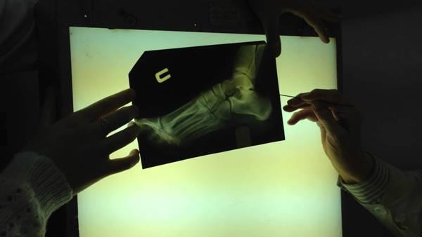 рентген при остеоартрозе стопы