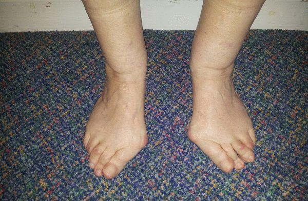 остеоартроз стопы