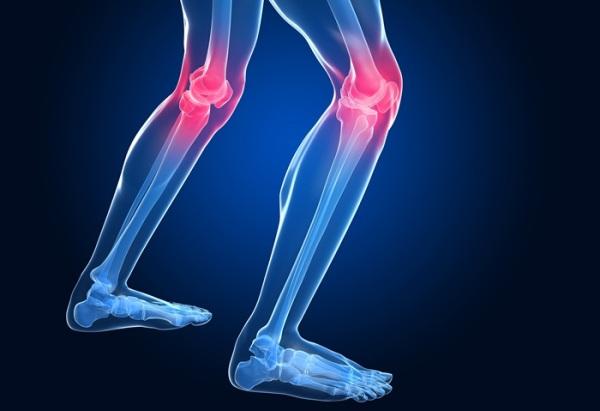 Остеопороз коленного сустава что за болезнь Симптоматика лечение