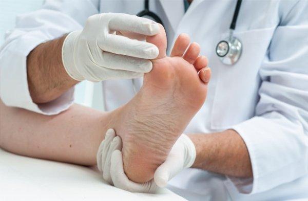 массаж при подагре ног
