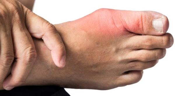 Подагра на пальце ноги лечение симптомы причины профилактика