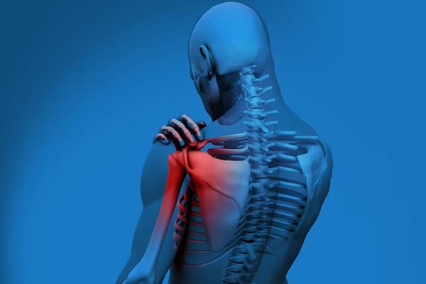 Растяжение связок плечевого сустава лечение в домашних