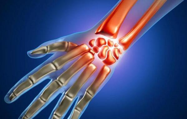 Лечение тендовагинита лучезапястного сустава медикаменты процедуры