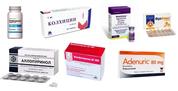 Препараты для лечения подагры: эффективные лекарства (таблетки) от подагры - отзывы