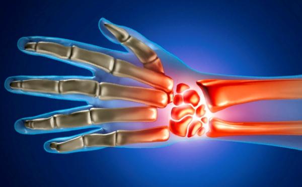 Артрит лучезапястного сустава лечение препараты – Артрит лучезапястного сустава: профилактика артрозов и артритов, симптомы и лечение, препараты и фото