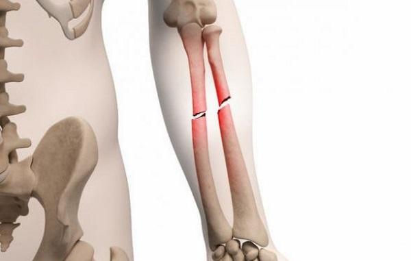 Пломба для костей: новый материал ускорит срастание переломов