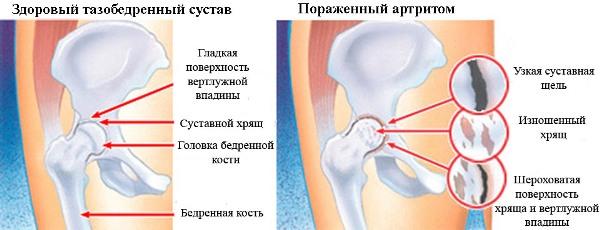 постоянные боли в тазобедренном суставе могут свидетельствовать об артрите