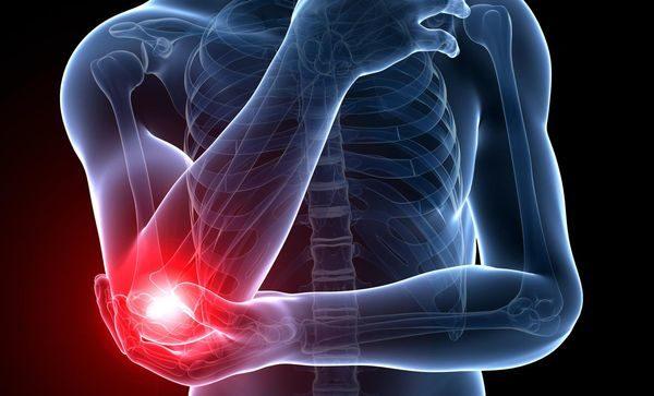 причиной боли в локте может быть артрит