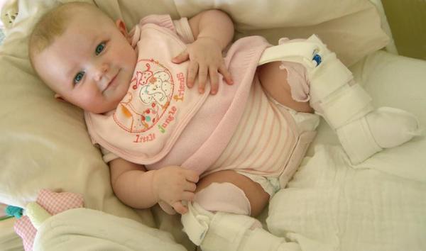 лечение вывихов при дисплазии тазобедренных суставов у детей с помощью ортопедических приспособлений