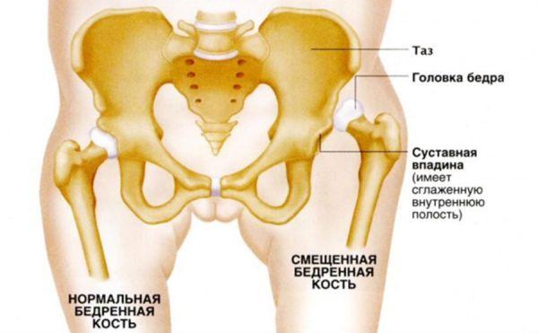 Дисплазия тазобедренных суставов у грудничков лечение