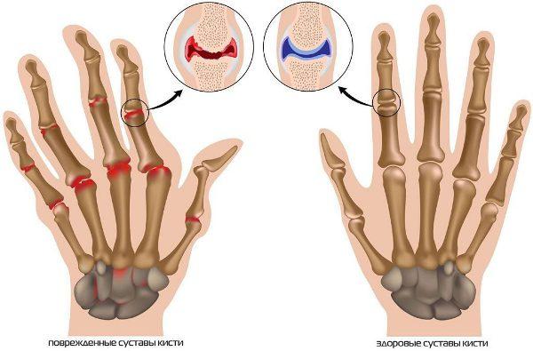 Остеоартроз мелких суставов кистей рук лечение