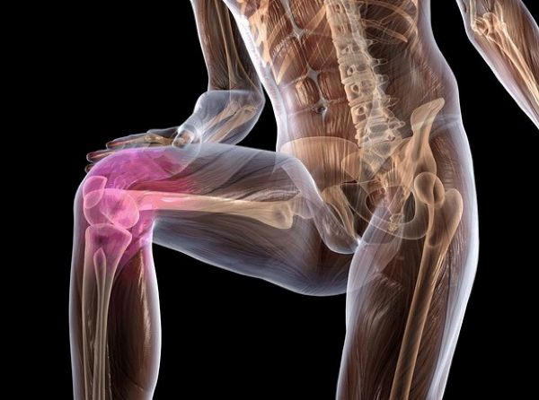 Лечение синовита коленного сустава в домашних условиях