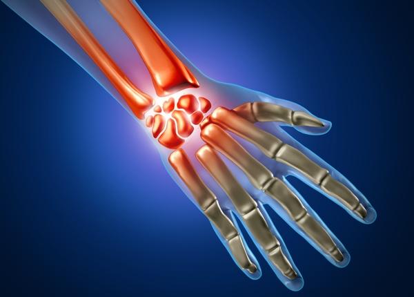 причиной боли в запястье может быть остеоартроз