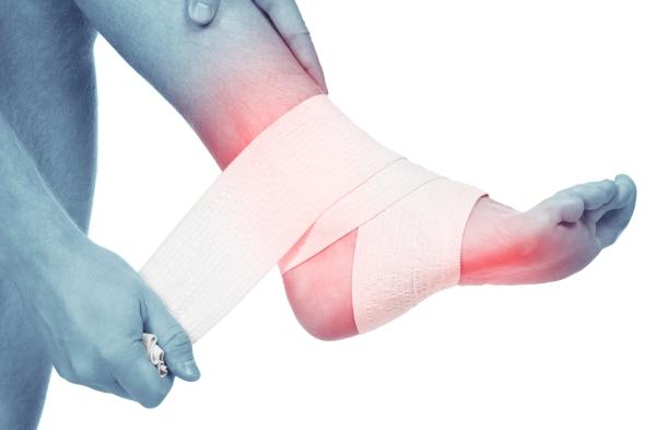 фиксирование бинтом при болях в голеностопном суставе