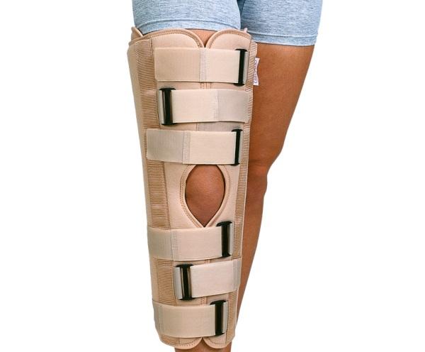 иммобилизация при вывихе коленного сустава