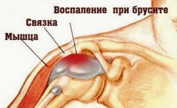 Субакромиальный бурсит — это воспаление синовиальной сумки, размещенной под наружным выступом лопаточной кости (акромионом).